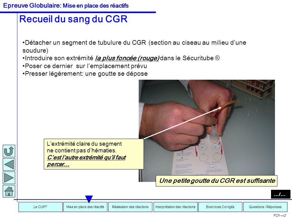 Recueil du sang du CGR Epreuve Globulaire: Mise en place des réactifs