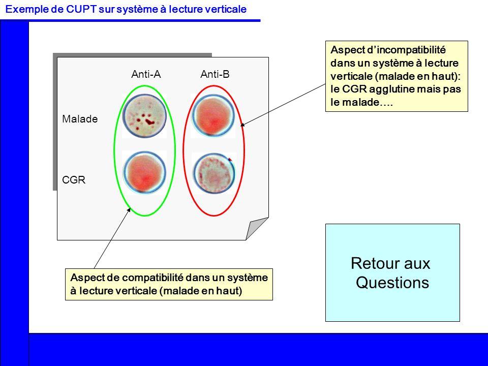 Retour aux Questions Exemple de CUPT sur système à lecture verticale