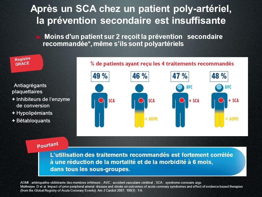 Après un SCA chez un patient poly-artériel, la prévention secondaire est insuffisante