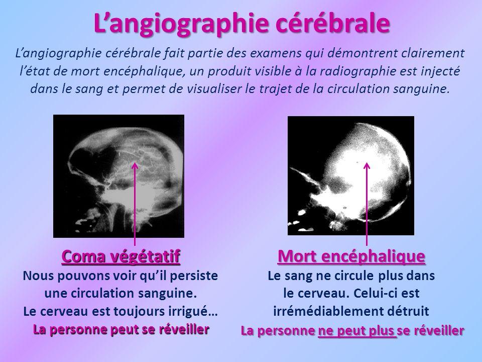 L'angiographie cérébrale