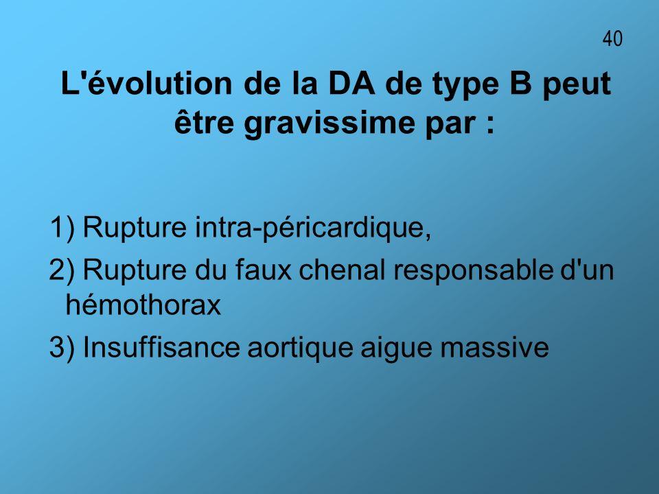 L évolution de la DA de type B peut être gravissime par :