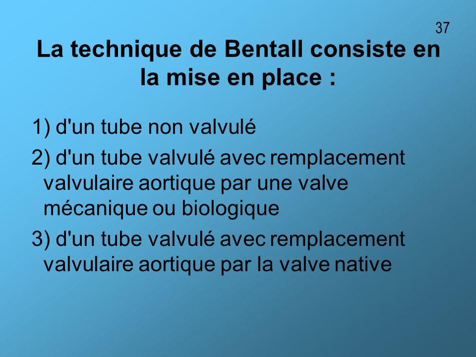 La technique de Bentall consiste en la mise en place :