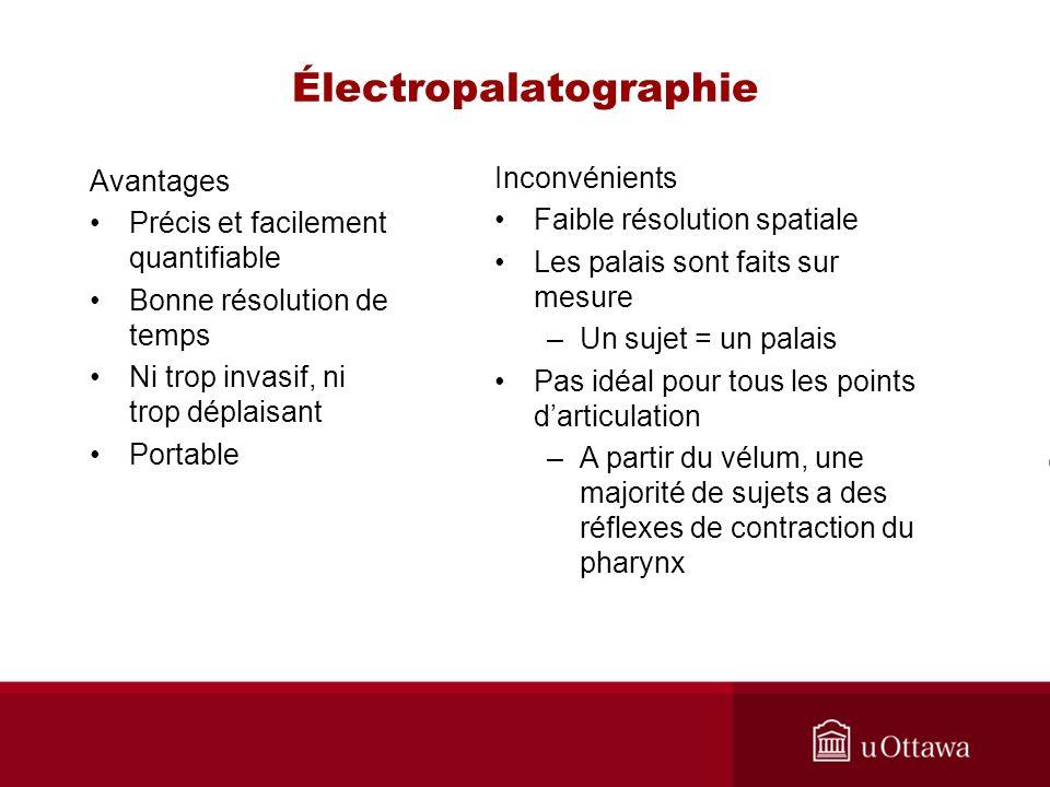 Électropalatographie