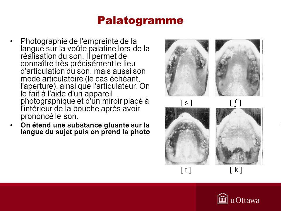 Palatogramme