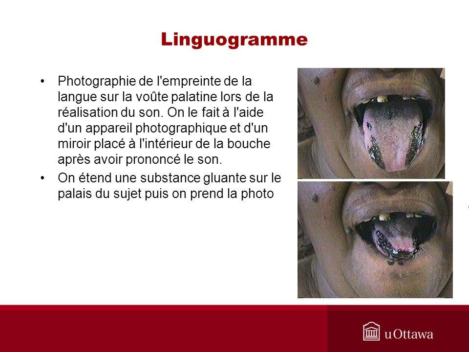 Linguogramme