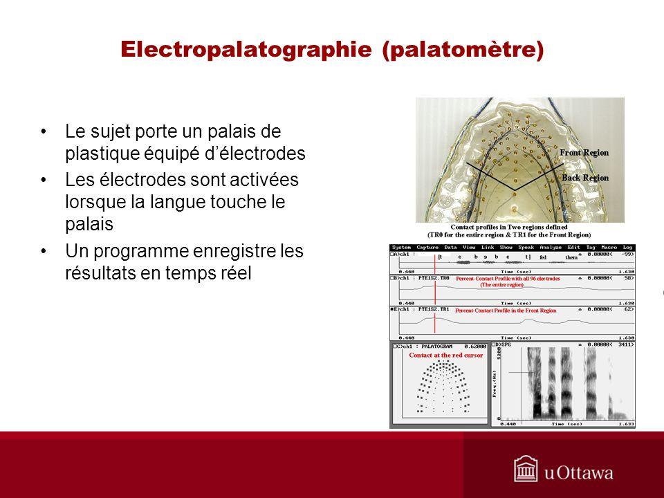 Electropalatographie (palatomètre)