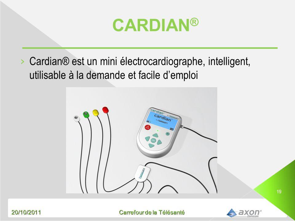 CARDIAN® Cardian® est un mini électrocardiographe, intelligent, utilisable à la demande et facile d'emploi.