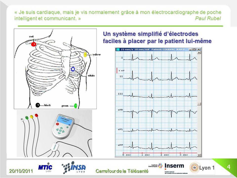 Un système simplifié d'électrodes