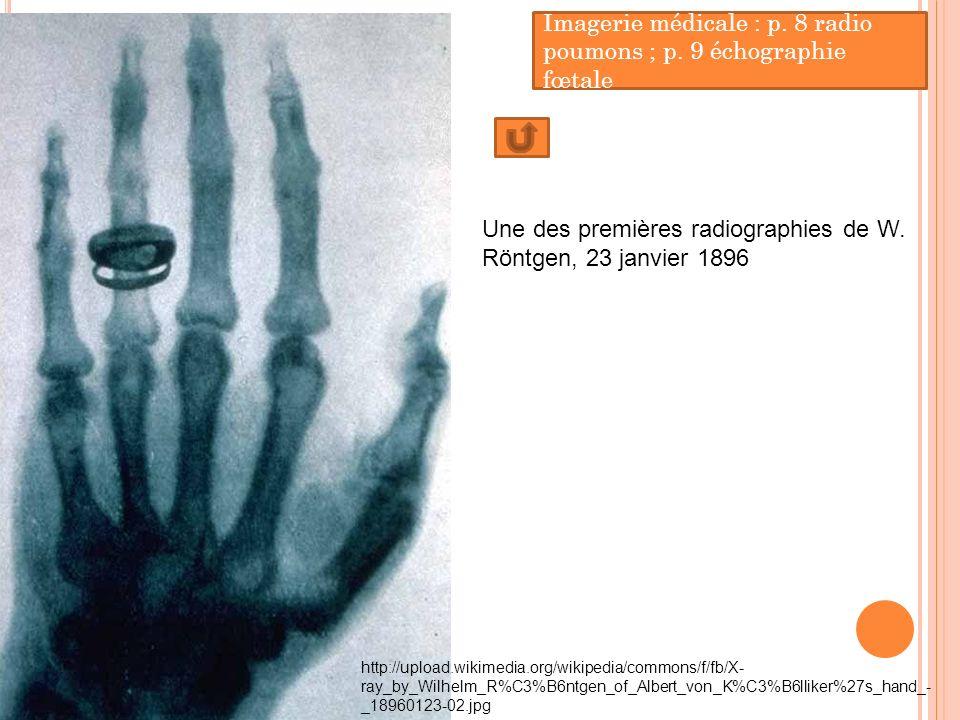 Imagerie médicale : p. 8 radio poumons ; p. 9 échographie fœtale