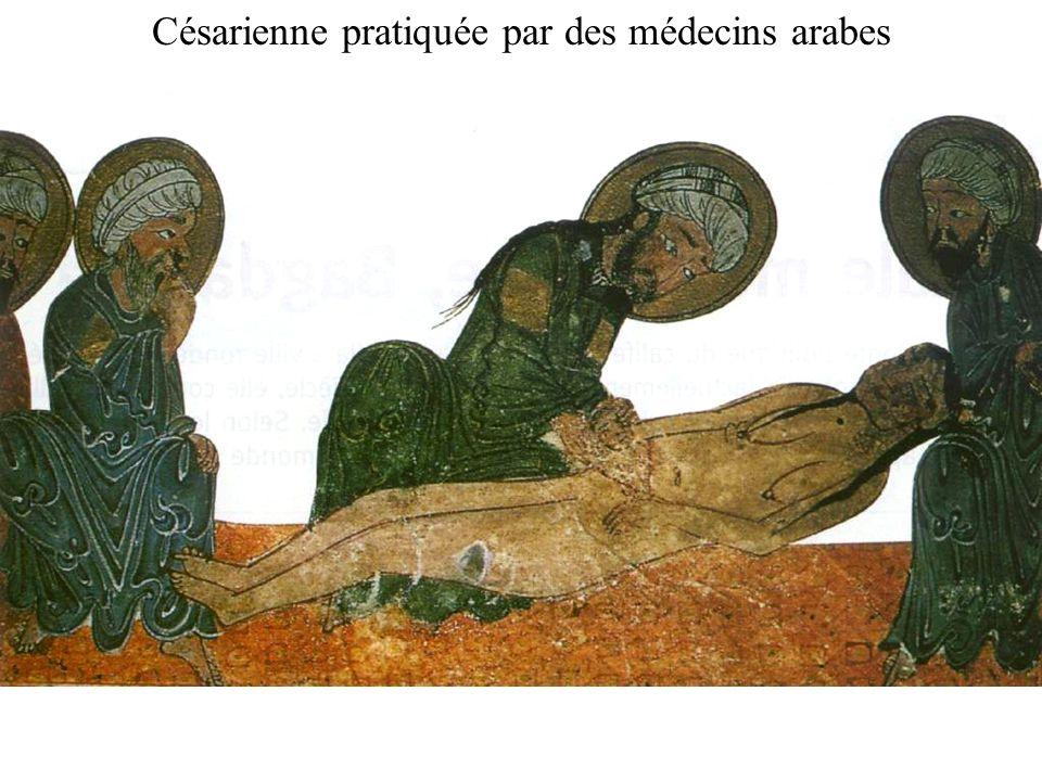 Césarienne pratiquée par des médecins arabes