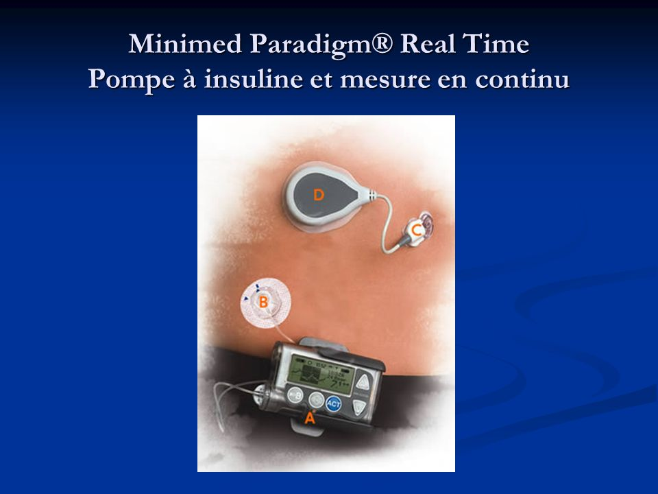 Minimed Paradigm® Real Time Pompe à insuline et mesure en continu