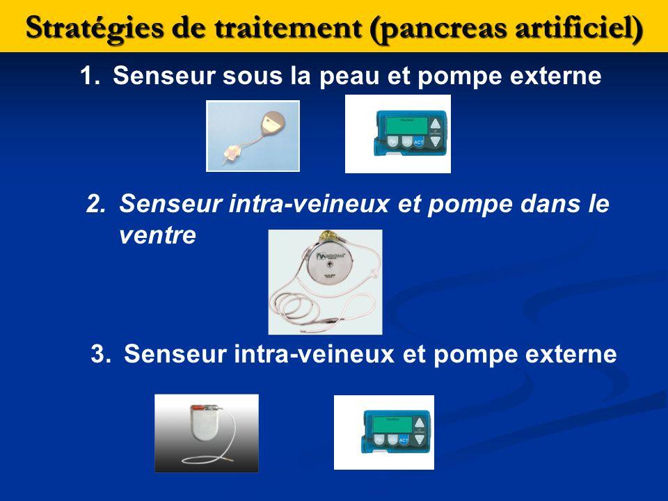 Stratégies de traitement (pancreas artificiel)