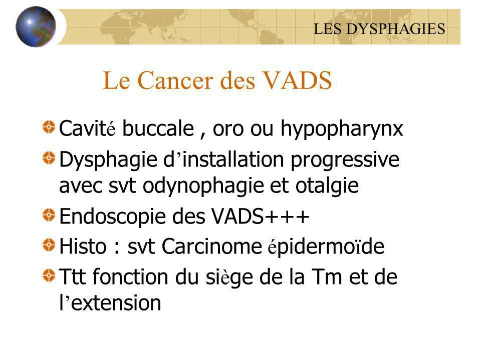 Le Cancer des VADS Cavité buccale , oro ou hypopharynx