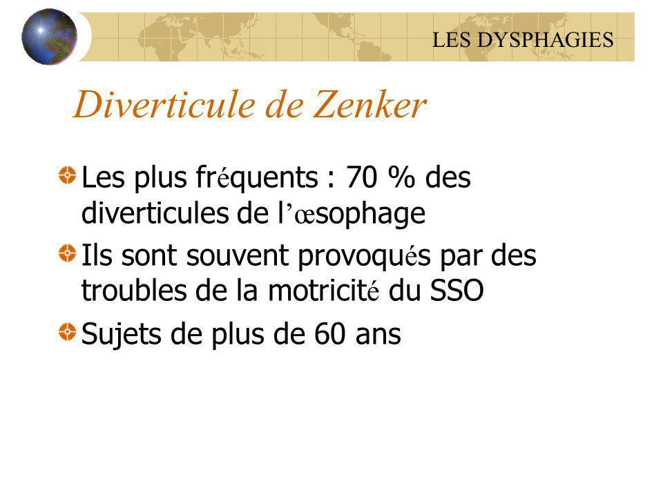 LES DYSPHAGIES Diverticule de Zenker. Les plus fréquents : 70 % des diverticules de l'œsophage.