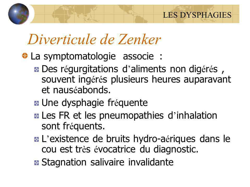 Diverticule de Zenker La symptomatologie associe :