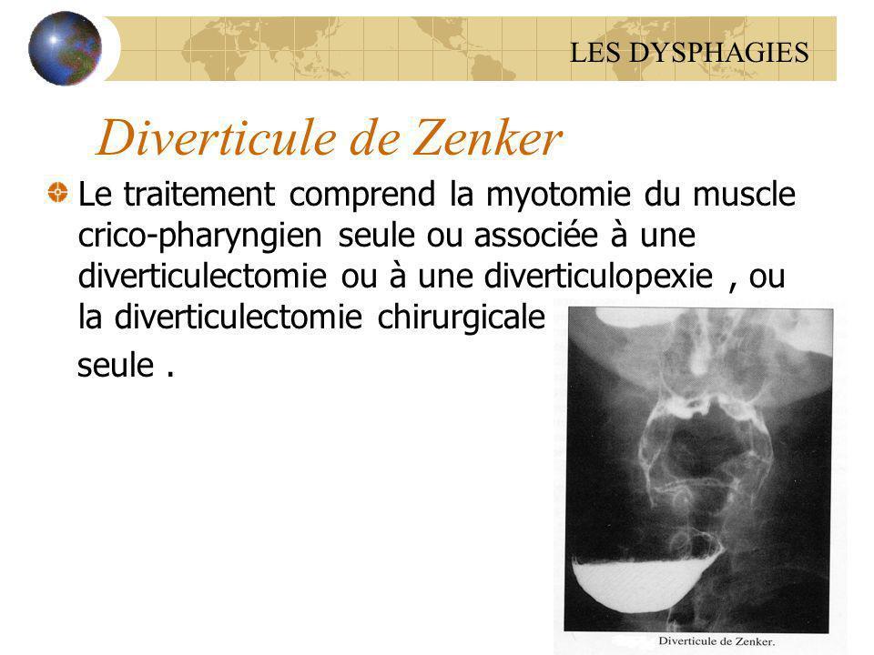 LES DYSPHAGIES Diverticule de Zenker.
