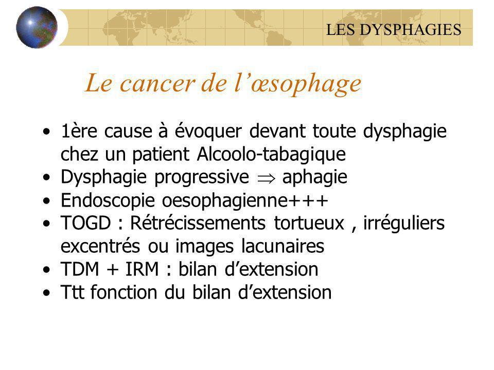Le cancer de l'œsophage