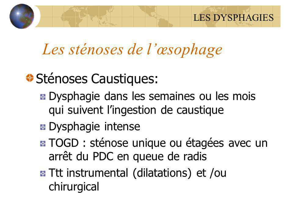 Les sténoses de l'œsophage