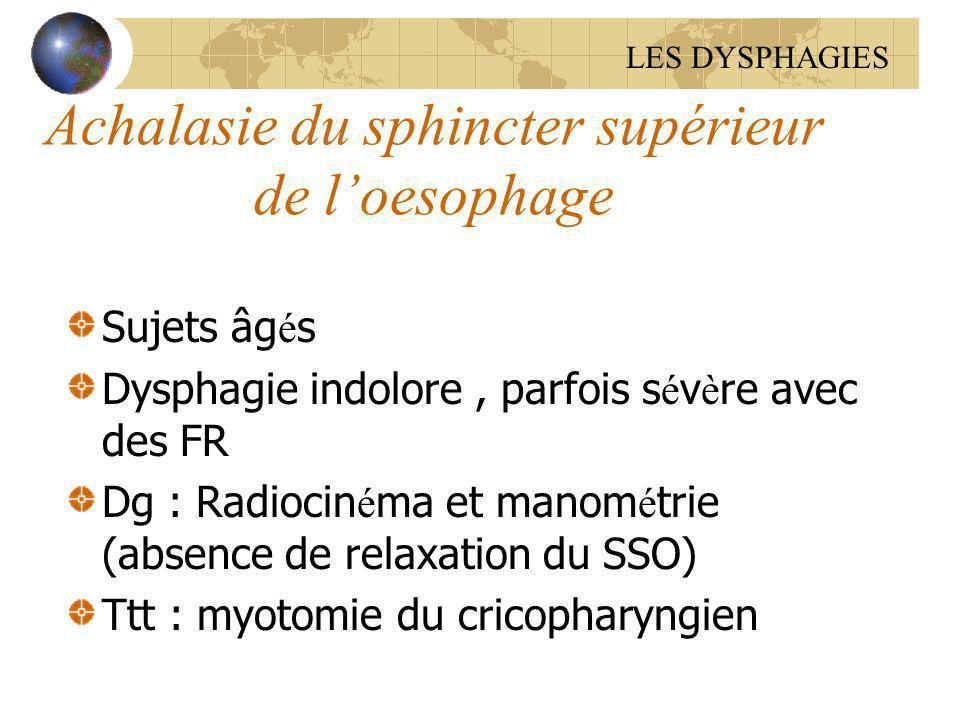 Achalasie du sphincter supérieur de l'oesophage