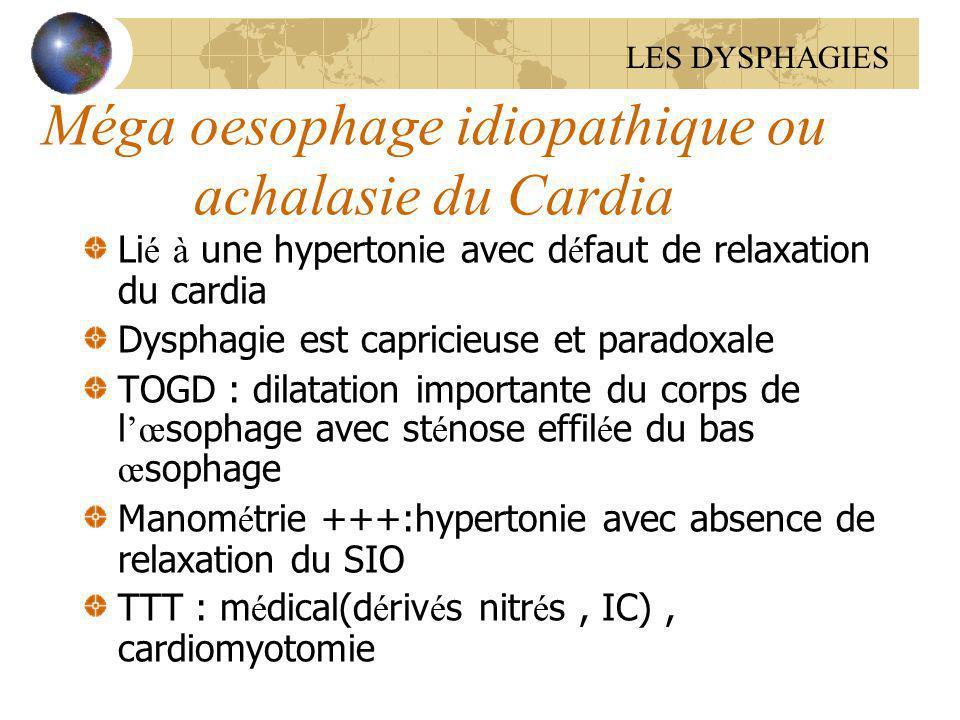 Méga oesophage idiopathique ou achalasie du Cardia