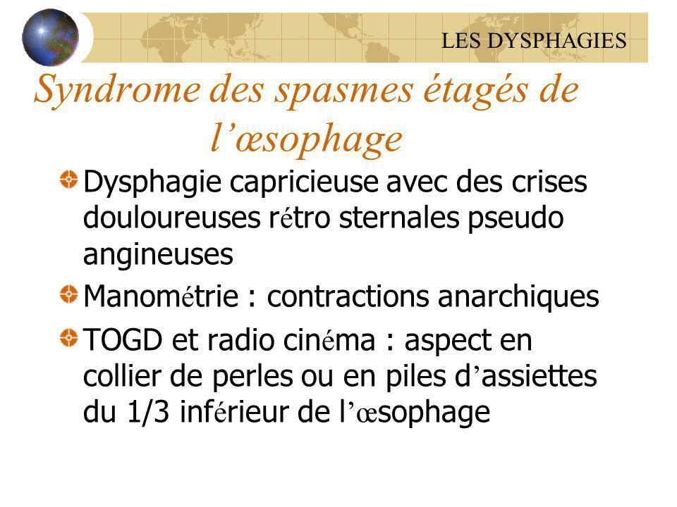 Syndrome des spasmes étagés de l'œsophage