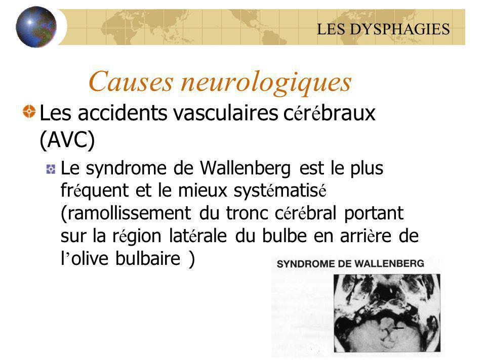 Causes neurologiques Les accidents vasculaires cérébraux (AVC)