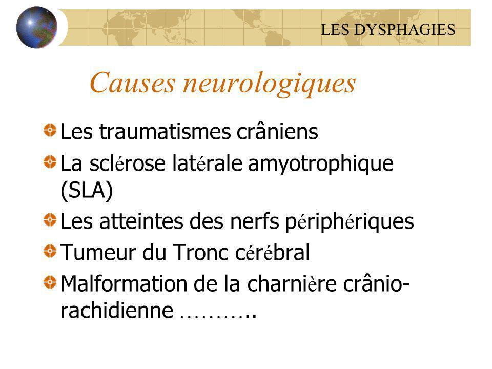 Causes neurologiques Les traumatismes crâniens