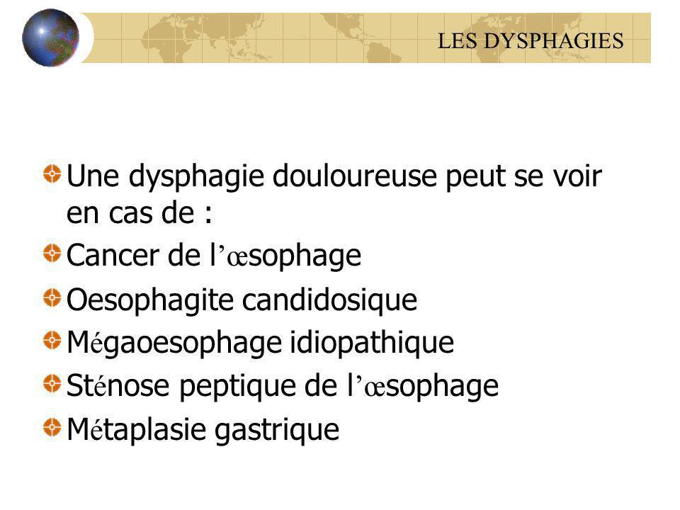 Une dysphagie douloureuse peut se voir en cas de :