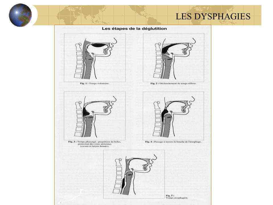 LES DYSPHAGIES