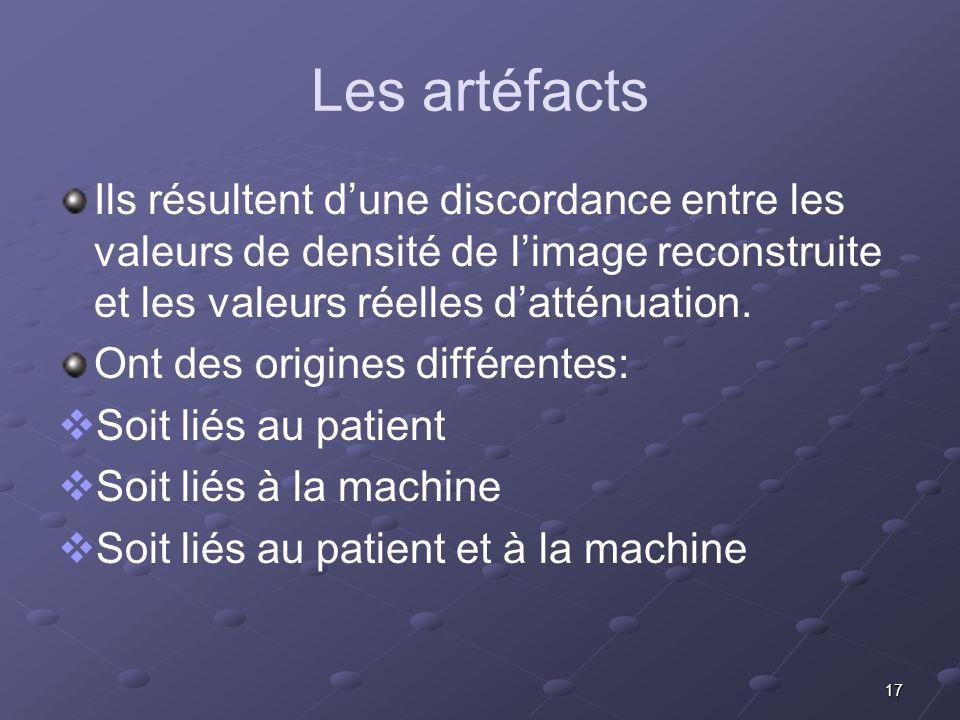 Les artéfacts Ils résultent d'une discordance entre les valeurs de densité de l'image reconstruite et les valeurs réelles d'atténuation.