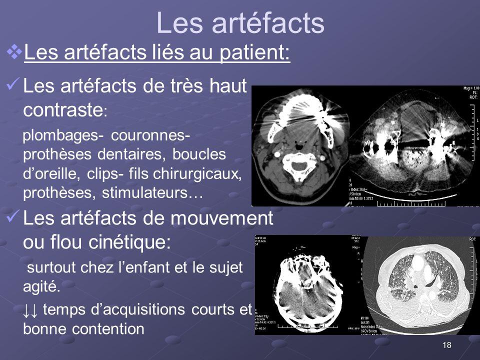 Les artéfacts Les artéfacts liés au patient: