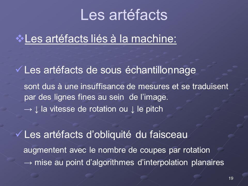 Les artéfacts Les artéfacts liés à la machine: