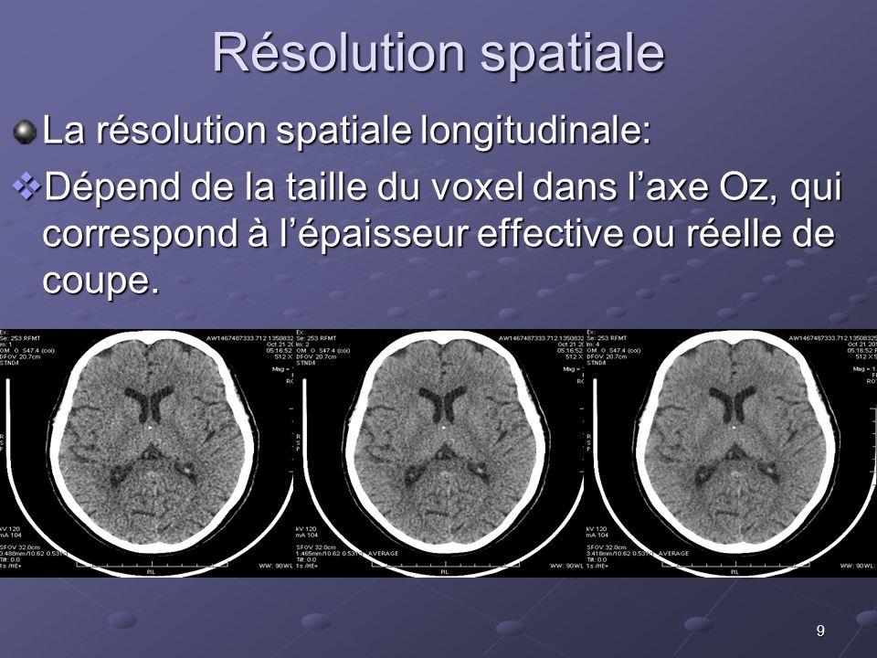 Résolution spatiale La résolution spatiale longitudinale: