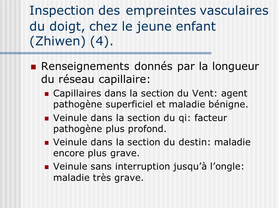 Inspection des empreintes vasculaires du doigt, chez le jeune enfant (Zhiwen) (4).
