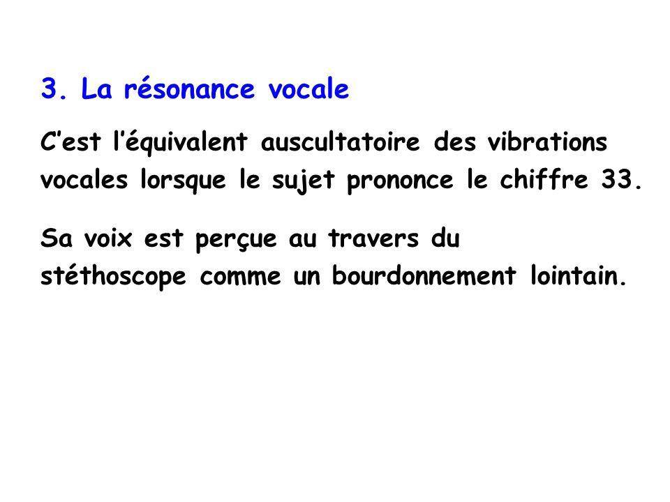 3. La résonance vocale C'est l'équivalent auscultatoire des vibrations