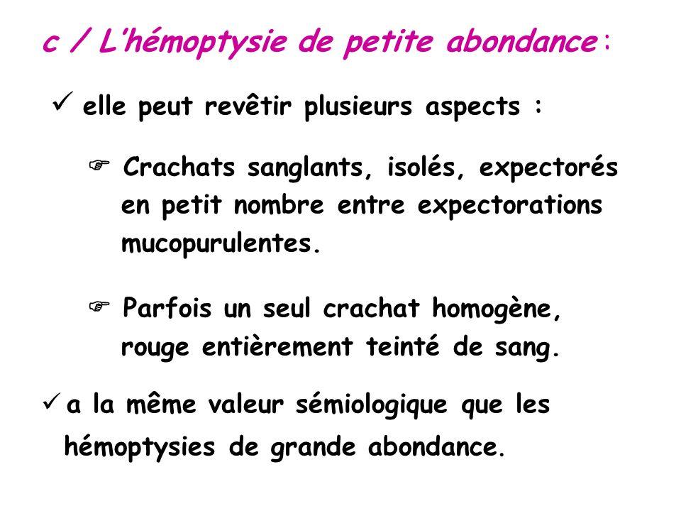 c / L'hémoptysie de petite abondance :