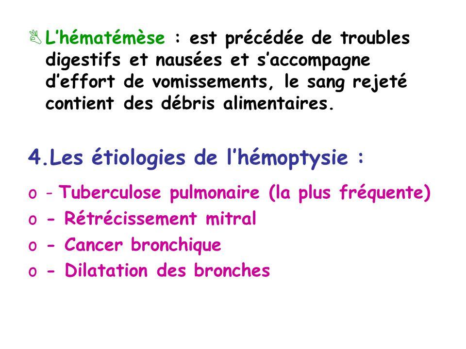 4.Les étiologies de l'hémoptysie :