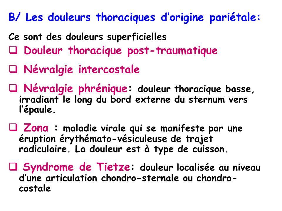 B/ Les douleurs thoraciques d'origine pariétale: