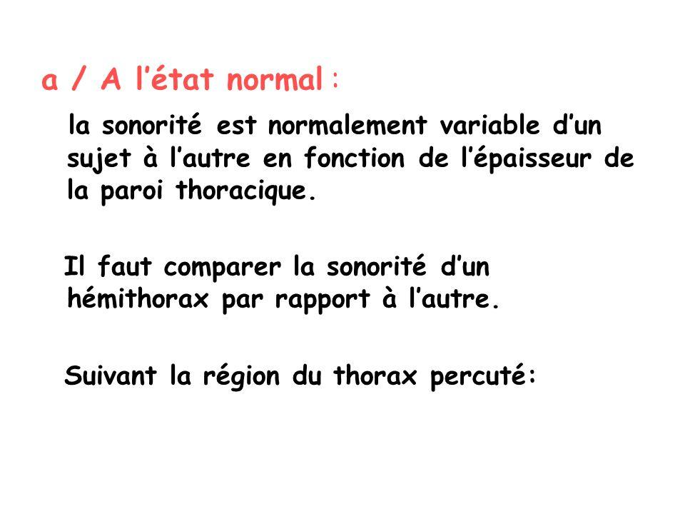 a / A l'état normal : la sonorité est normalement variable d'un sujet à l'autre en fonction de l'épaisseur de la paroi thoracique.
