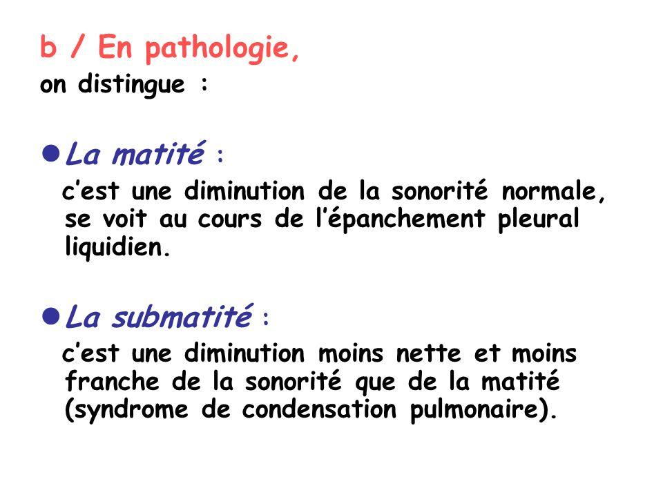 b / En pathologie, La matité : La submatité : on distingue :