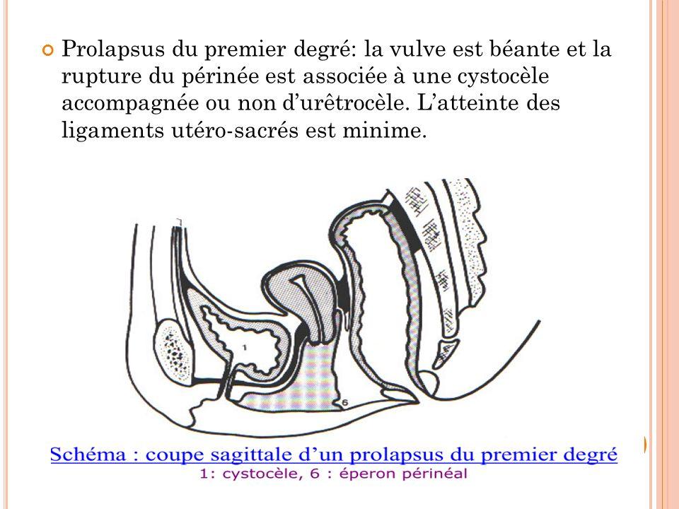 Prolapsus du premier degré: la vulve est béante et la rupture du périnée est associée à une cystocèle accompagnée ou non d'urêtrocèle.