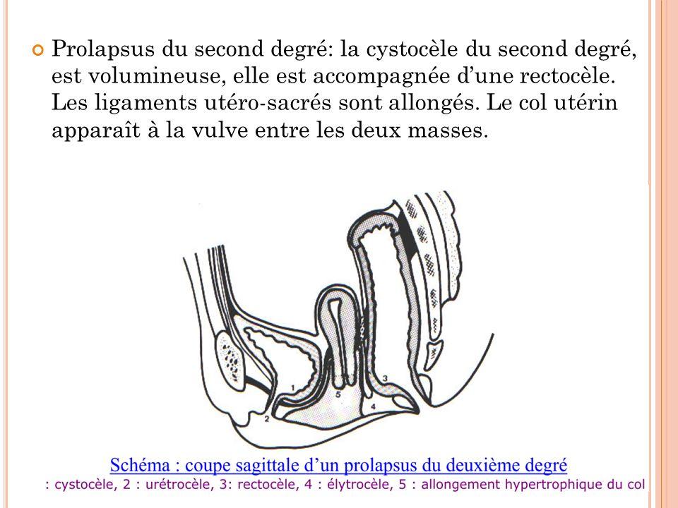 Prolapsus du second degré: la cystocèle du second degré, est volumineuse, elle est accompagnée d'une rectocèle.