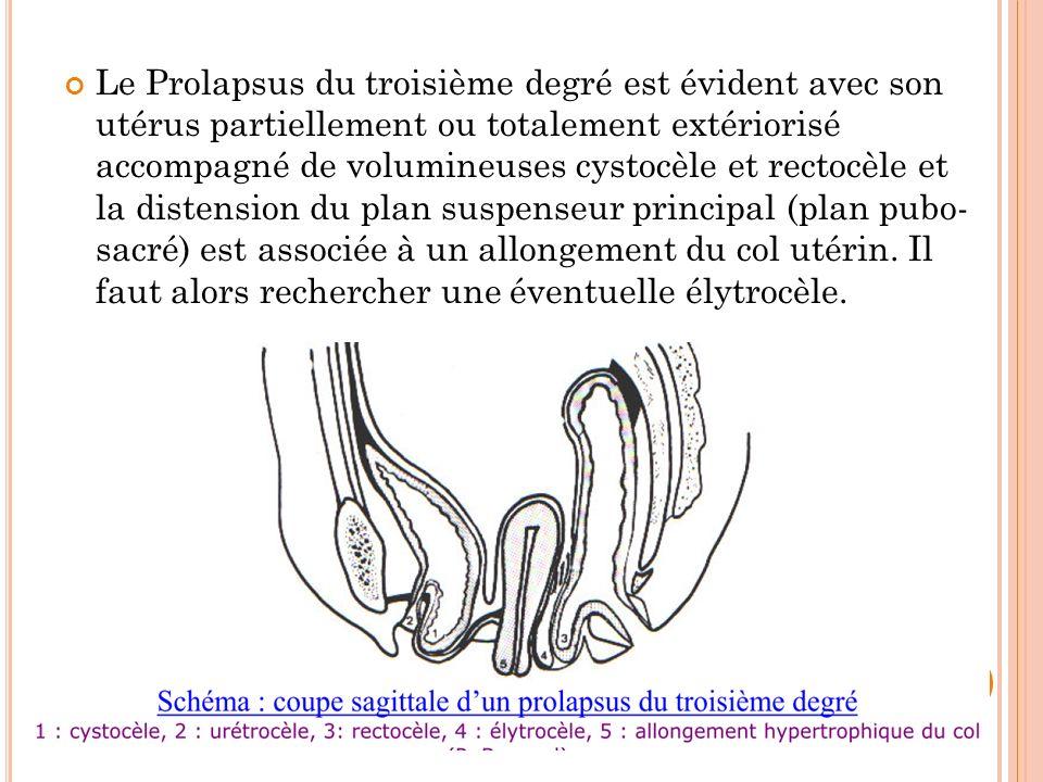 Le Prolapsus du troisième degré est évident avec son utérus partiellement ou totalement extériorisé accompagné de volumineuses cystocèle et rectocèle et la distension du plan suspenseur principal (plan pubo- sacré) est associée à un allongement du col utérin.