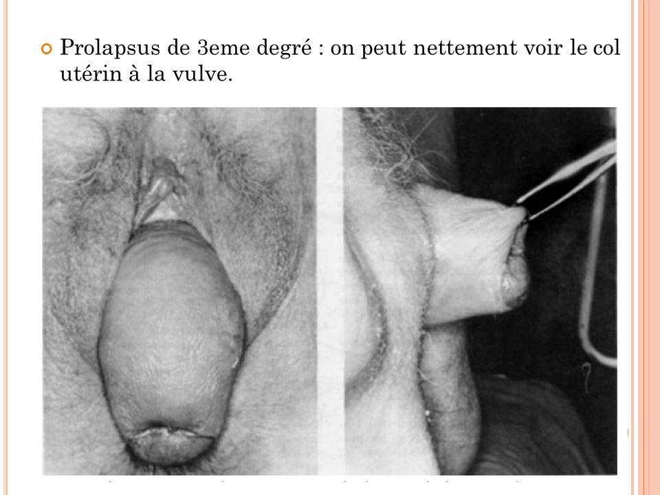 Prolapsus de 3eme degré : on peut nettement voir le col utérin à la vulve.