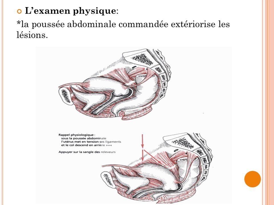 L'examen physique: *la poussée abdominale commandée extériorise les lésions.