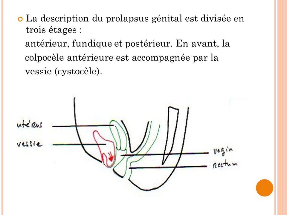 La description du prolapsus génital est divisée en trois étages :