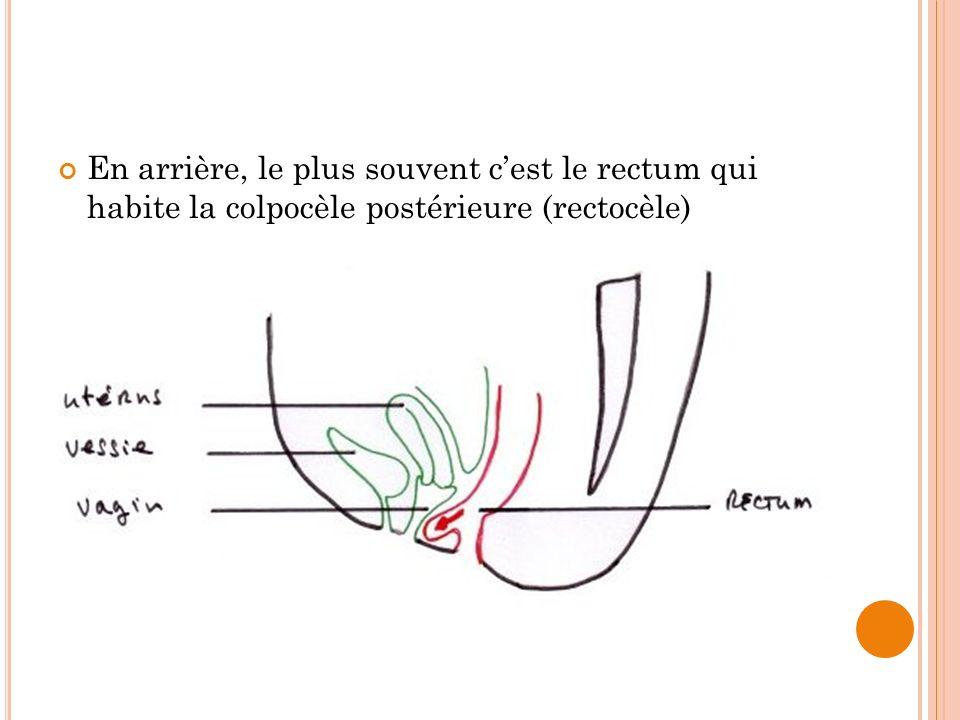 En arrière, le plus souvent c'est le rectum qui habite la colpocèle postérieure (rectocèle)