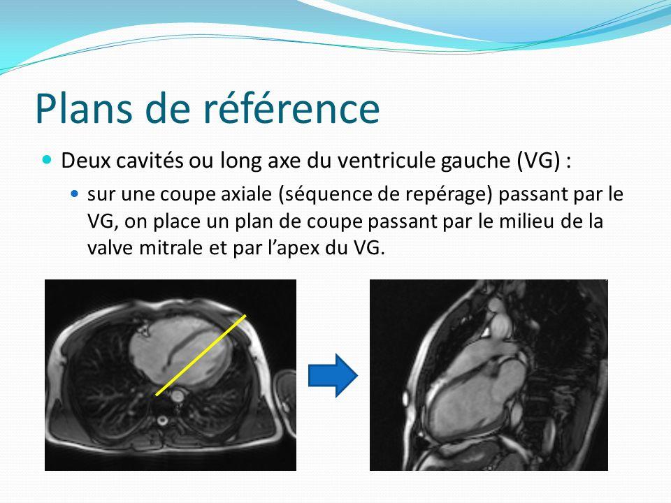 Plans de référence Deux cavités ou long axe du ventricule gauche (VG) :