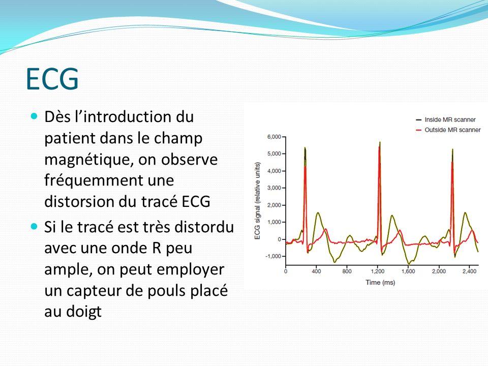 ECG Dès l'introduction du patient dans le champ magnétique, on observe fréquemment une distorsion du tracé ECG.