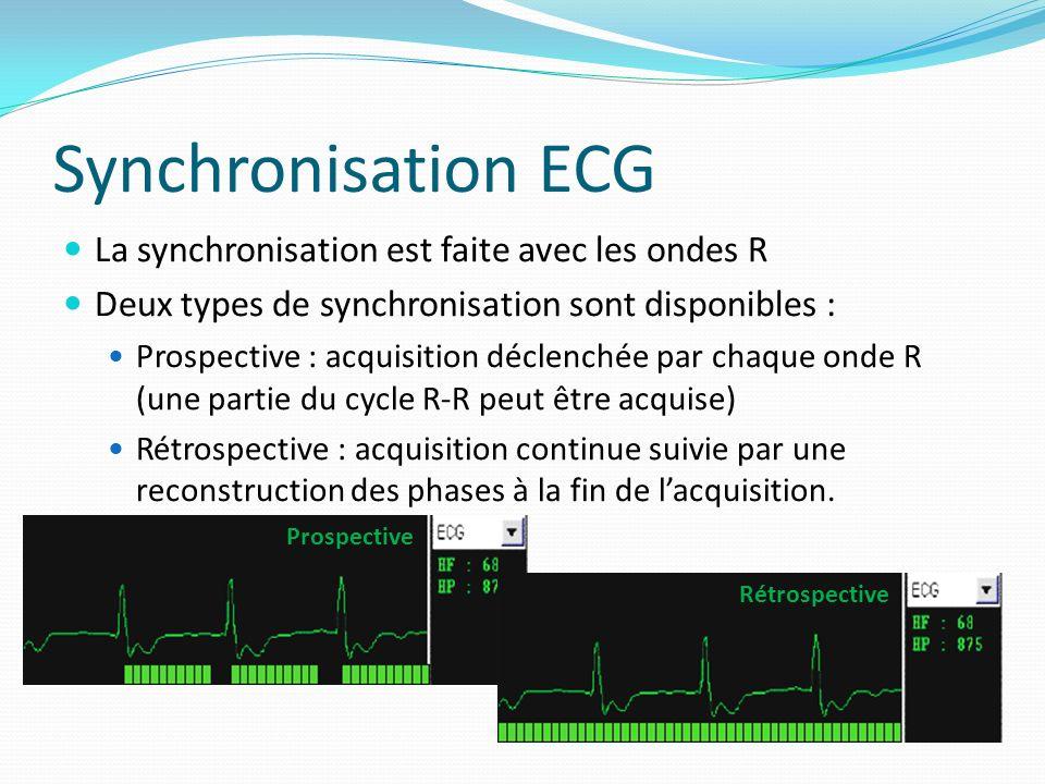 Synchronisation ECG La synchronisation est faite avec les ondes R